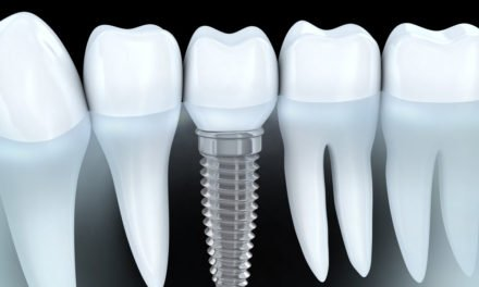 Are Dental Implants for You?