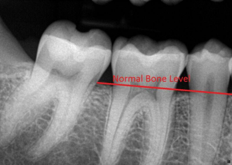 The Fight Against Gum Disease