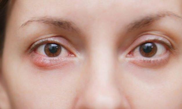 Caring for a Hordeolum Lesion (Eyelid Stye)